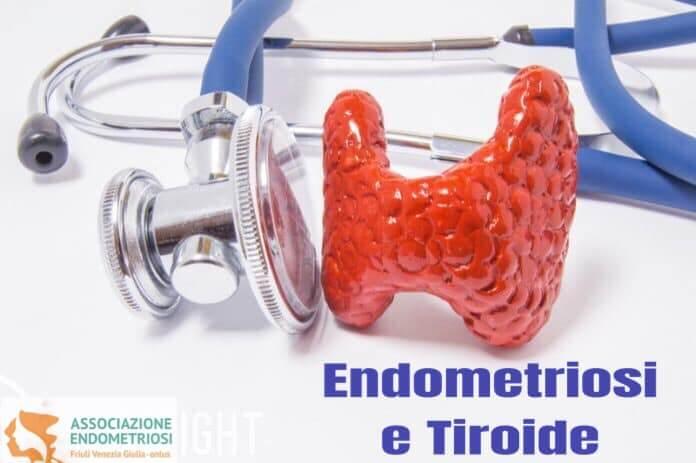 La caratteristica principale dell'endometriosi